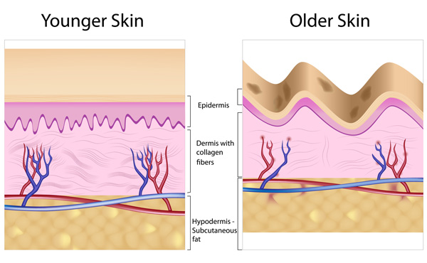 Aging-and-Deterioration-of-Collagen Collagen What Is Collagen Supplements? Aging and Deterioration of Collagen