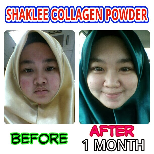 shaklee collagen powder collagen terbaik untuk kulit Shaklee Collagen Powder, Collagen Terbaik Untuk Kulit Anda! img1383452963590 picsay shaklee collagen powder
