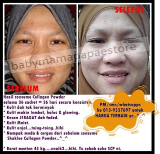 shaklee collagen powder collagen terbaik untuk kulit Shaklee Collagen Powder, Collagen Terbaik Untuk Kulit Anda! testi 36 sachet5 collagen powder