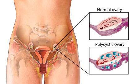 {focus_keyword} Masalah Kesuburan Wanita pcos1
