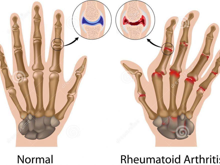 Vitamin untuk Reumatoid Arthritis