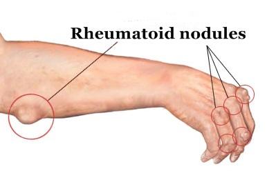 Reumatoid Arthritis reumatoid arthritis Apakah Itu Reumatoid Arthritis (RA)? rheumatoid nodules sites