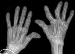 Reumatoid Arthritis reumatoid arthritis Apakah Itu Reumatoid Arthritis (RA)? x ray