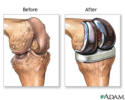 ubat sakit lutut ubat sakit lutut Ubat Sakit Lutut - Memudahkan Ibu Untuk Solat Osteoarthritis