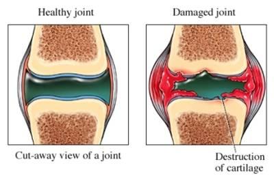 ubat sakit lutut ubat sakit lutut Ubat Sakit Lutut - Memudahkan Ibu Untuk Solat physical examination ubat sakit lutut