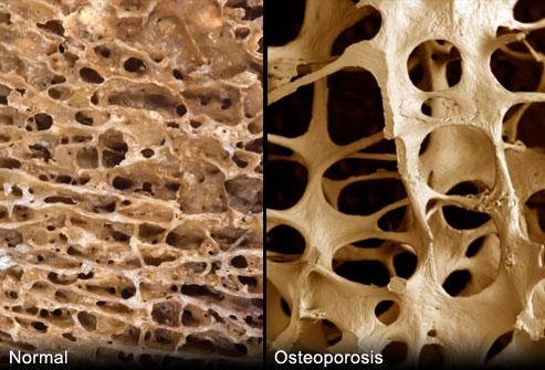 tulang rapuh osteoporosis {focus_keyword} Patah Tulang Boleh Berpunca dari Osteoporosis Tanpa Disedari webmd rm photo of porous bones
