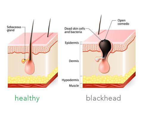 cara mengecilkan pori wajah Cara Mengecilkan Pori Wajah Supaya Tiada Blackhead Blackhead large
