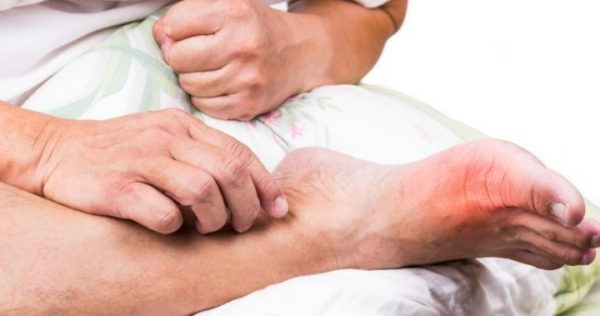 penyakit gout dan punca kena penyakit gout penyakit gout Punca Penyakit Gout Dan Siapa Berisiko Kena Gout gout  1