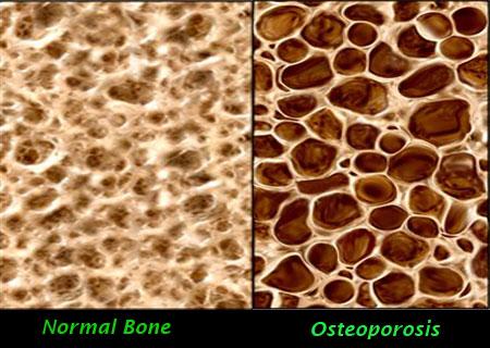 Capture the Fracture – Tangani Masalah Osteoporosis