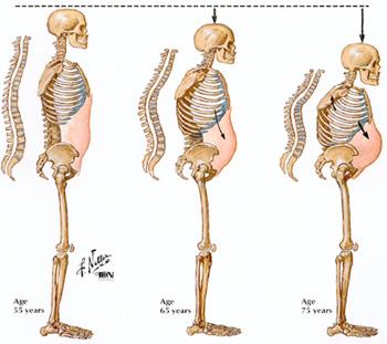 Ostematrix – Membantu Mengurangkan Risiko Osteoporosis