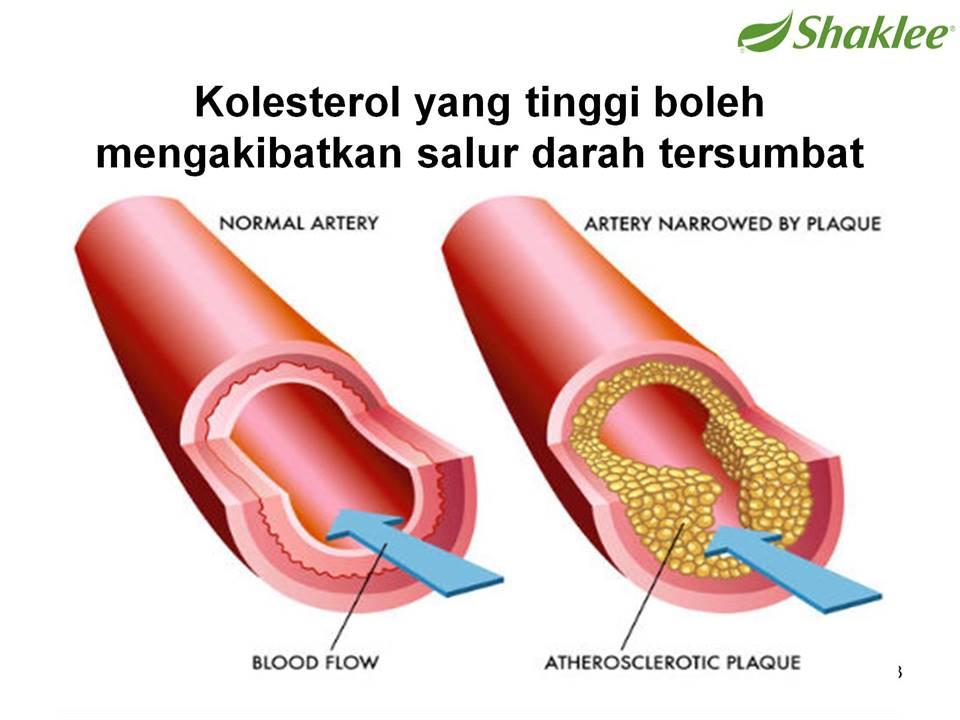 phytocol st shaklee Kolesterol