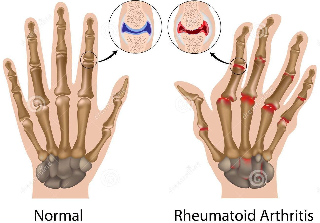 Vitamin Untuk Rheumatoid Arthritis