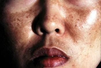 Senarai Produk Kosmetik Berbahaya Yang Dibatalkan oleh BPFK