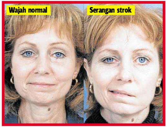 wajah sakit strok