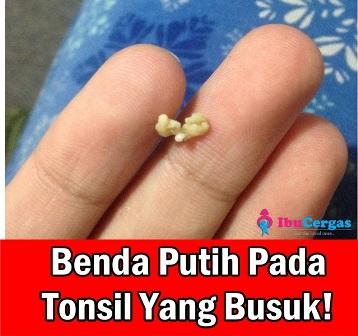 Bengkak Tonsil Sakit Tonsil Rawatan Sakit Tonsil Ubat Sakit Tonsil Gambar Tonsil Normal Putih-putih Tonsil Busuk 2