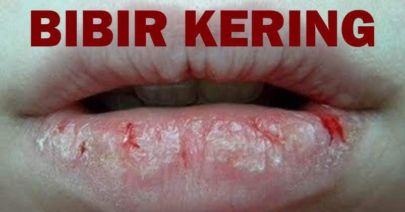 6 Tips Merawat Bibir Kering, Pecah Dan Berdarah Ketika Berpuasa