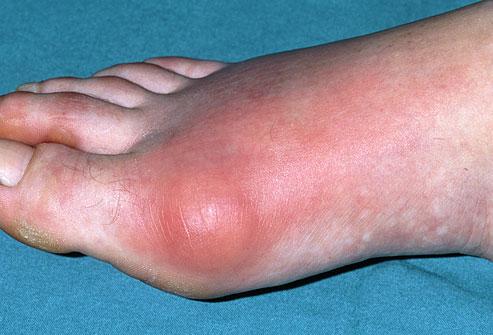 Makanan Yang Patut Dielakkan Jika Ada Gout