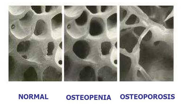 NORMAL. OSTEOPENIA. OSTEOPOROSIS.