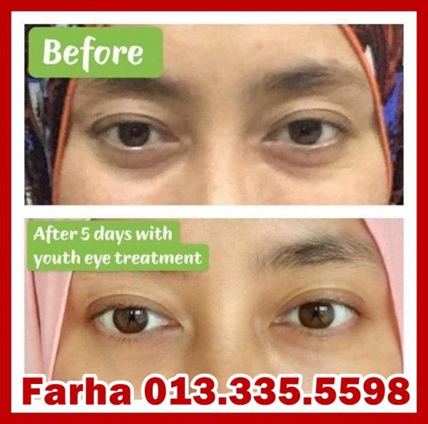 Punca Dan Cara Hilangkan Eye Bag Lingkaran Gelap Bawah Mata