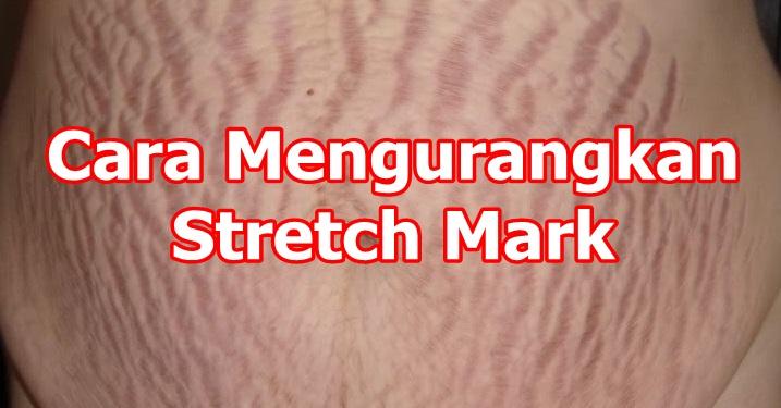 Cara Menghilangkan Strecth Mark Cepat Pantas Kulit Elastik