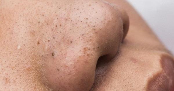 Cara Mengecilkan Pori Wajah Supaya Tiada Blackhead