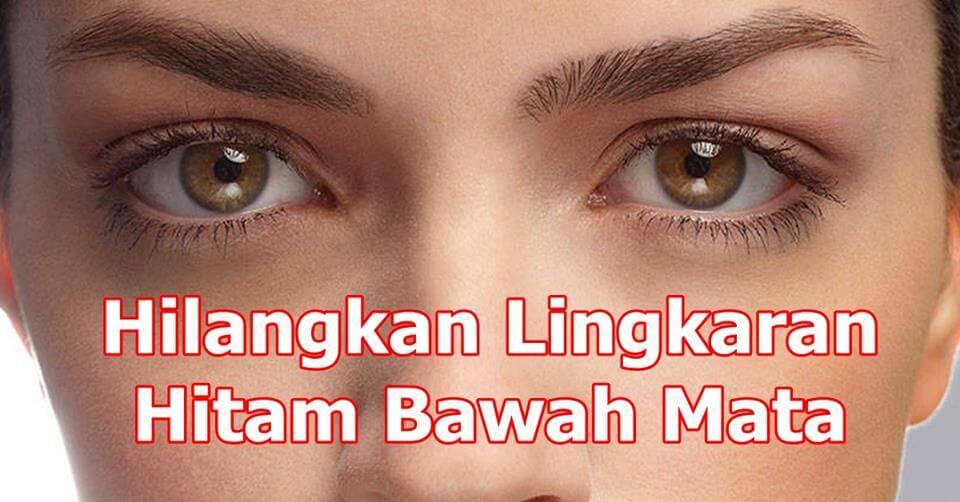 Punca Dan Cara Hilangkan Eye Bag @ Lingkaran Gelap Bawah Mata