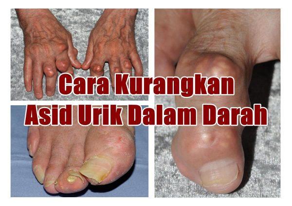 Gout membentuk Podagra Ubat Sakit Gout Cara Kurangkan Asid Urik Dalam Darah