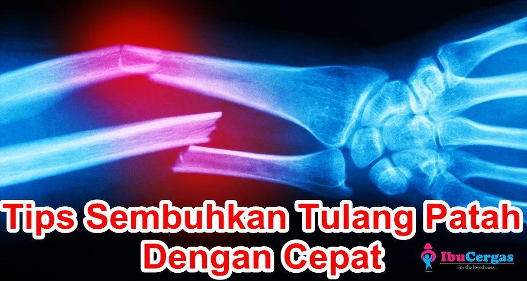 Tips dan Cara Cepat Sembuhkan Tulang Patah Dan Tulang Retak