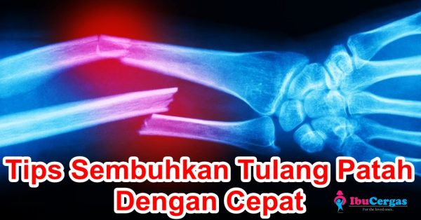 Tulang Patah Cepat Sembuh Tulang Retak Cepat Sembuh