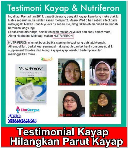 testimonial ubat kayap secara semulajadi tradisional ubat kayap shaklee (2)