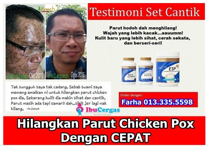 Ubat Paling Berkesan Untuk Chicken pox, Ubat Untuk Hilangkan Bekas Parut Chicken Pox